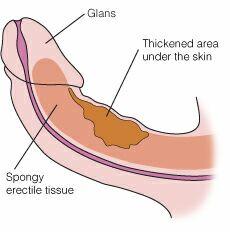 penyakit penis melengkung